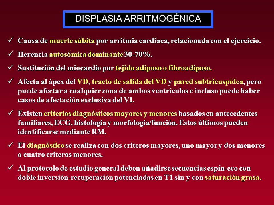 DISPLASIA ARRITMOGÉNICA
