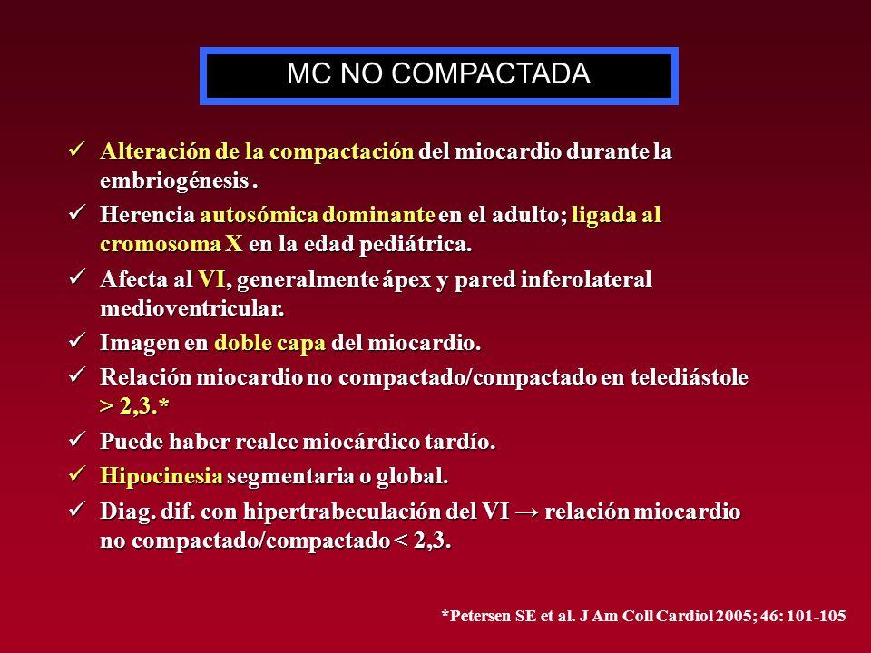 MC NO COMPACTADA Alteración de la compactación del miocardio durante la embriogénesis .