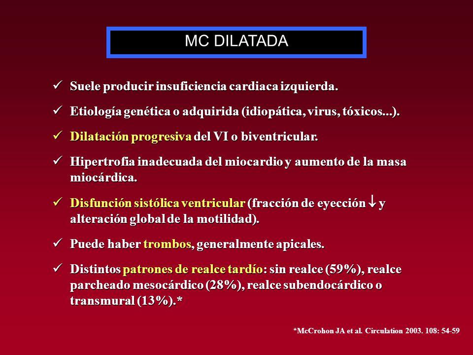 MC DILATADA Suele producir insuficiencia cardiaca izquierda.