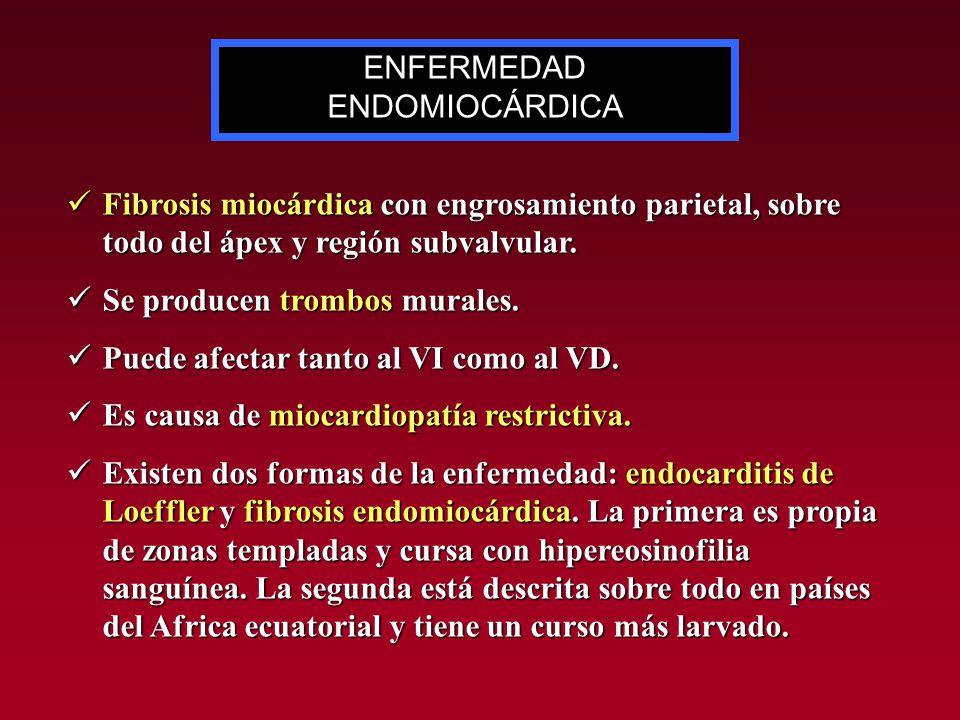 ENFERMEDAD ENDOMIOCÁRDICA