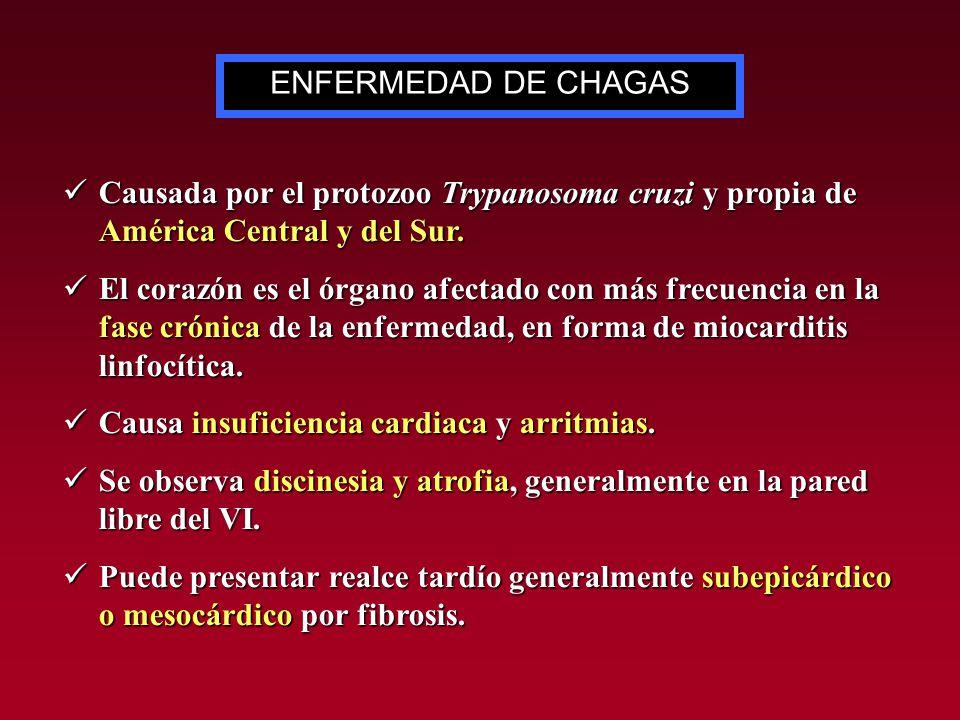 ENFERMEDAD DE CHAGAS Causada por el protozoo Trypanosoma cruzi y propia de América Central y del Sur.