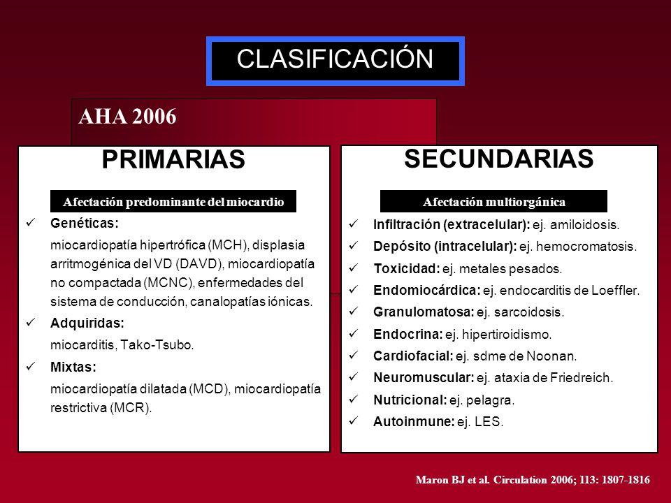 Afectación predominante del miocardio Afectación multiorgánica