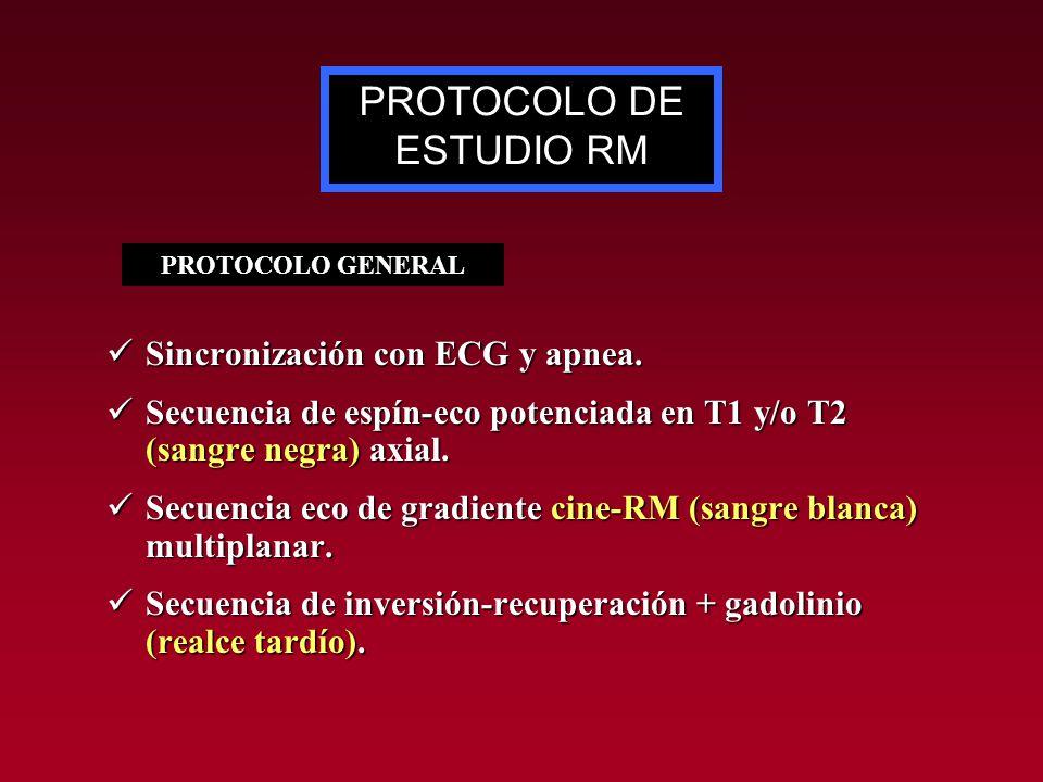 PROTOCOLO DE ESTUDIO RM