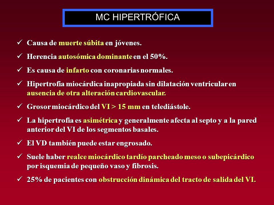 MC HIPERTRÓFICA Causa de muerte súbita en jóvenes.