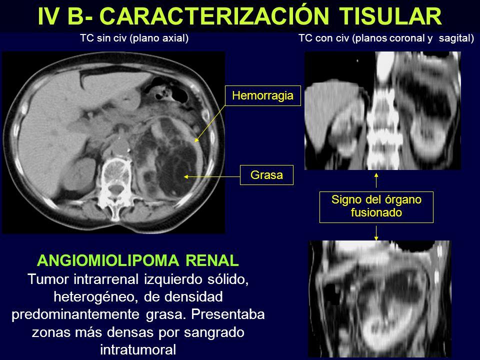 IV B- CARACTERIZACIÓN TISULAR
