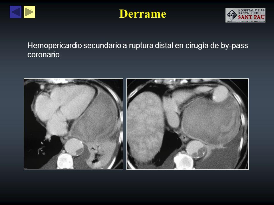 Derrame Hemopericardio secundario a ruptura distal en cirugía de by-pass coronario. 13