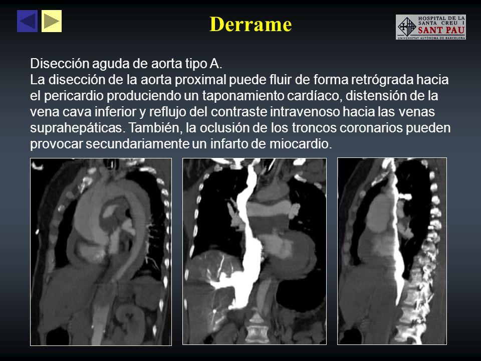 Derrame Disección aguda de aorta tipo A.