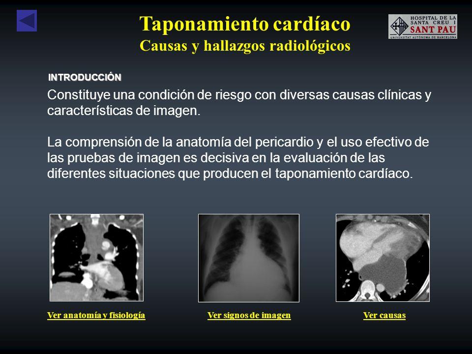 Taponamiento cardíaco Causas y hallazgos radiológicos