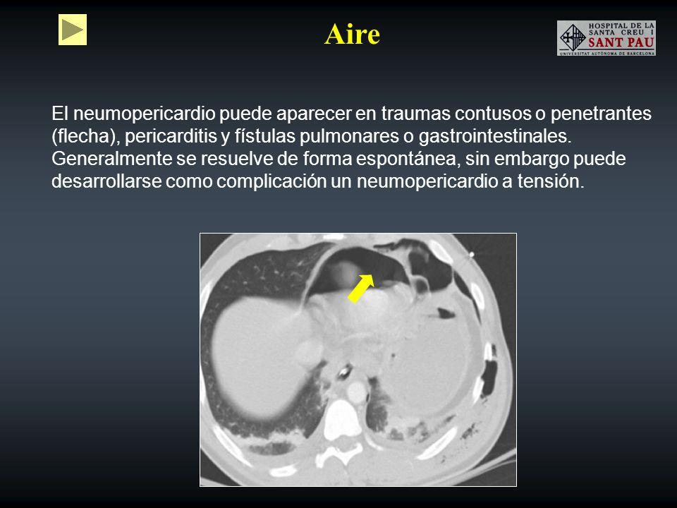 Aire El neumopericardio puede aparecer en traumas contusos o penetrantes (flecha), pericarditis y fístulas pulmonares o gastrointestinales.