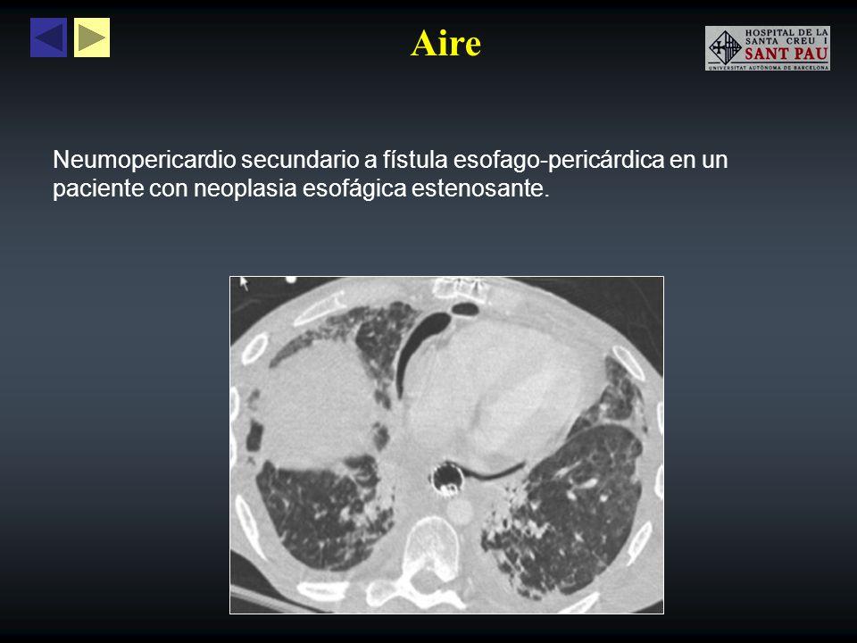 Aire Neumopericardio secundario a fístula esofago-pericárdica en un paciente con neoplasia esofágica estenosante.