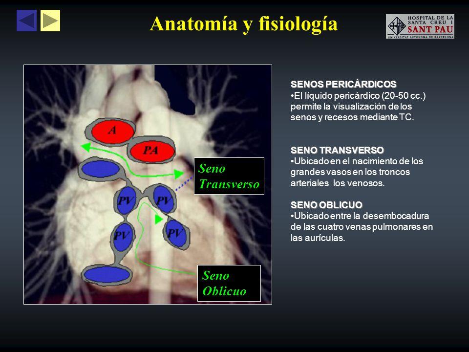 Anatomía y fisiología Seno Transverso Oblicuo SENOS PERICÁRDICOS