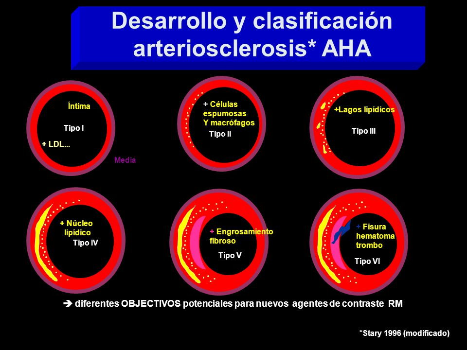 Desarrollo y clasificación arteriosclerosis* AHA