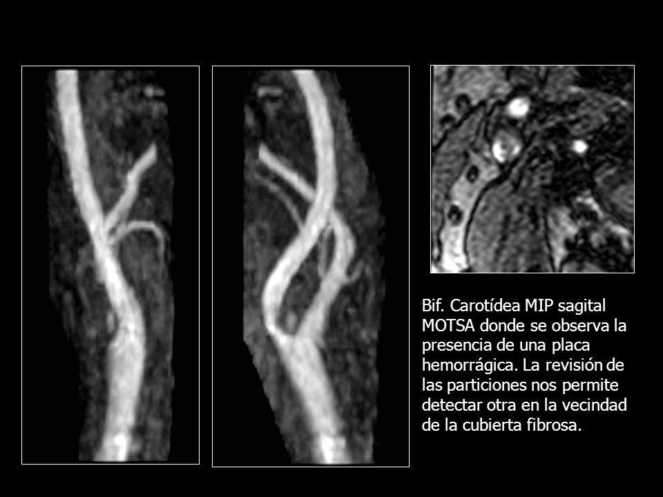 Bif. Carotídea MIP sagital MOTSA donde se observa la presencia de una placa hemorrágica.