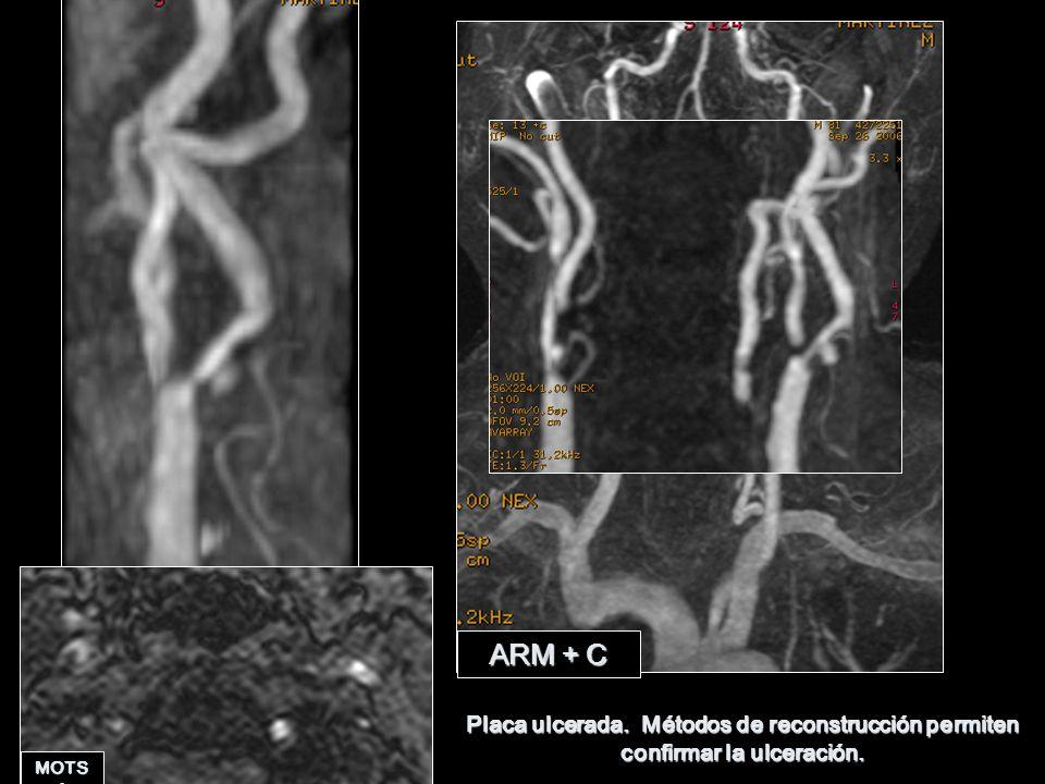 ARM + C Placa ulcerada. Métodos de reconstrucción permiten confirmar la ulceración. MOTSA