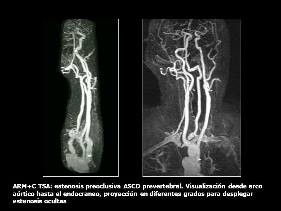 ARM+C TSA: estenosis preoclusiva ASCD prevertebral