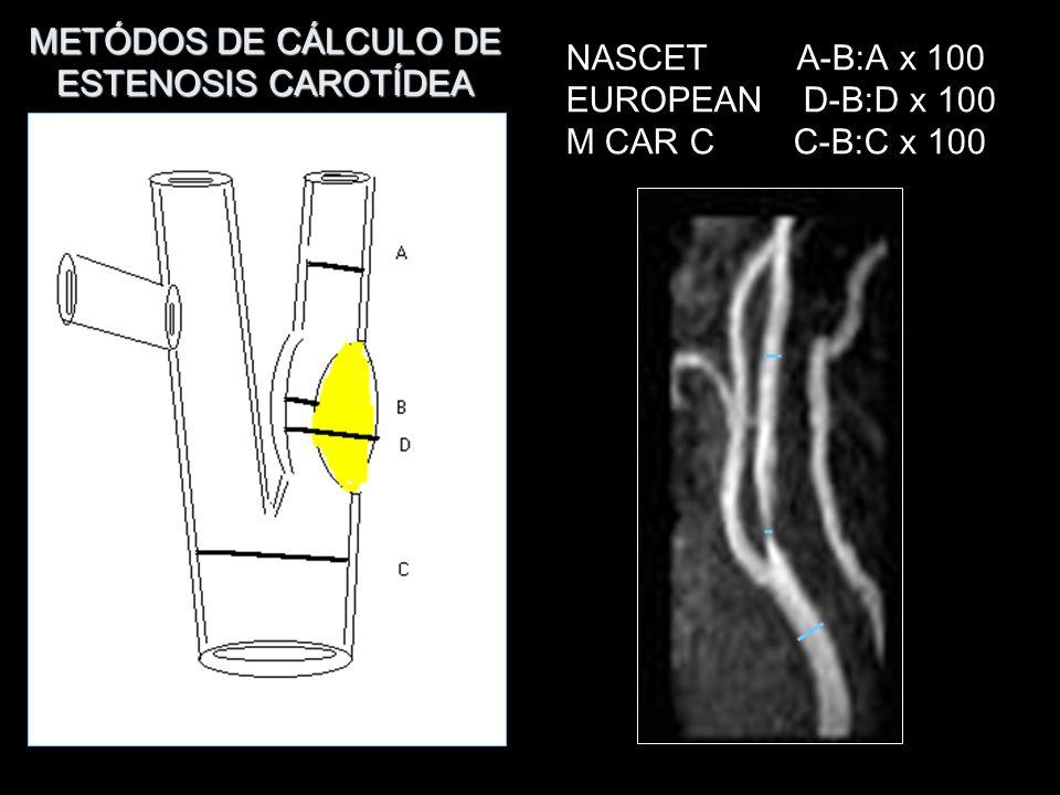METÓDOS DE CÁLCULO DE ESTENOSIS CAROTÍDEA