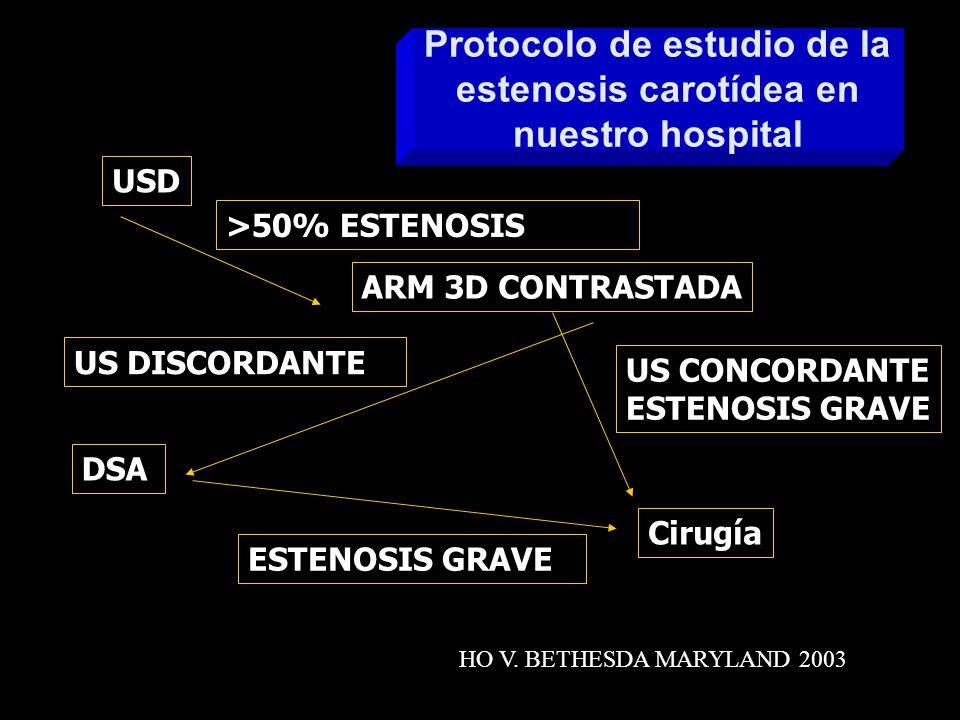 Protocolo de estudio de la estenosis carotídea en nuestro hospital