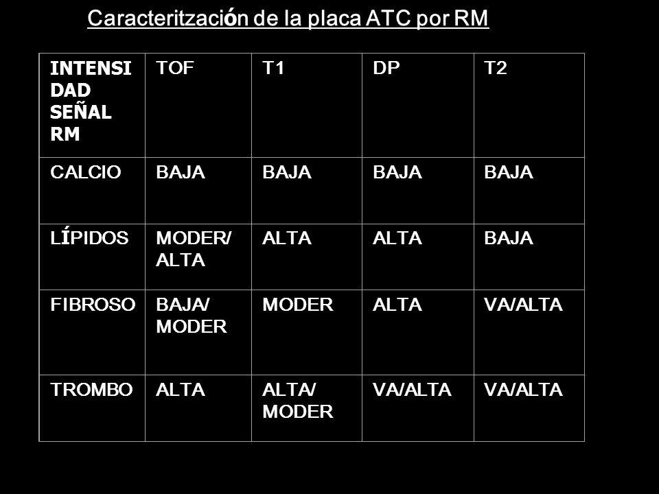Caracteritzación de la placa ATC por RM