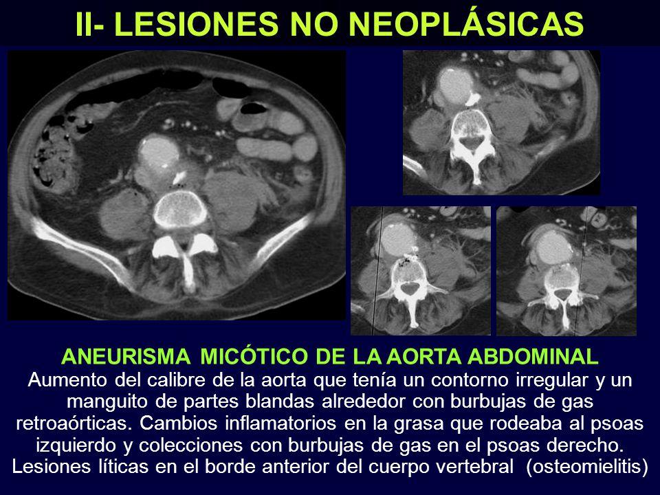 II- LESIONES NO NEOPLÁSICAS