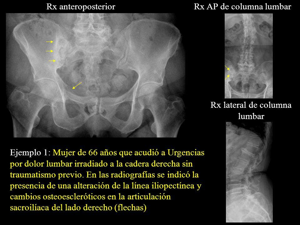 Rx lateral de columna lumbar