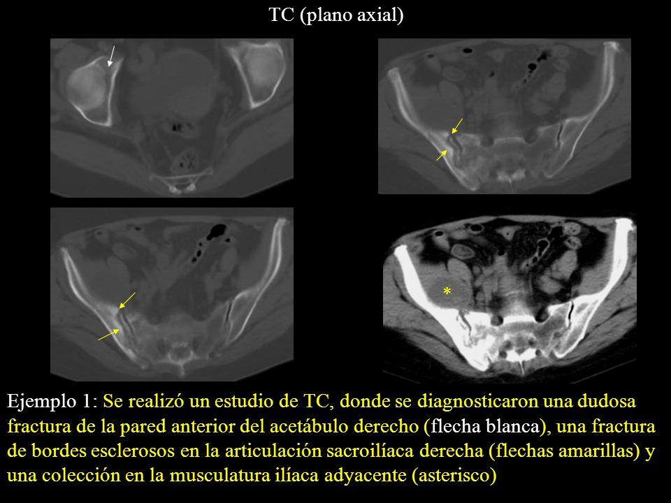 TC (plano axial) *