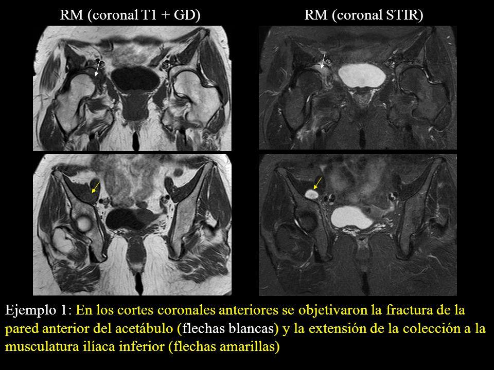 RM (coronal T1 + GD) RM (coronal STIR)
