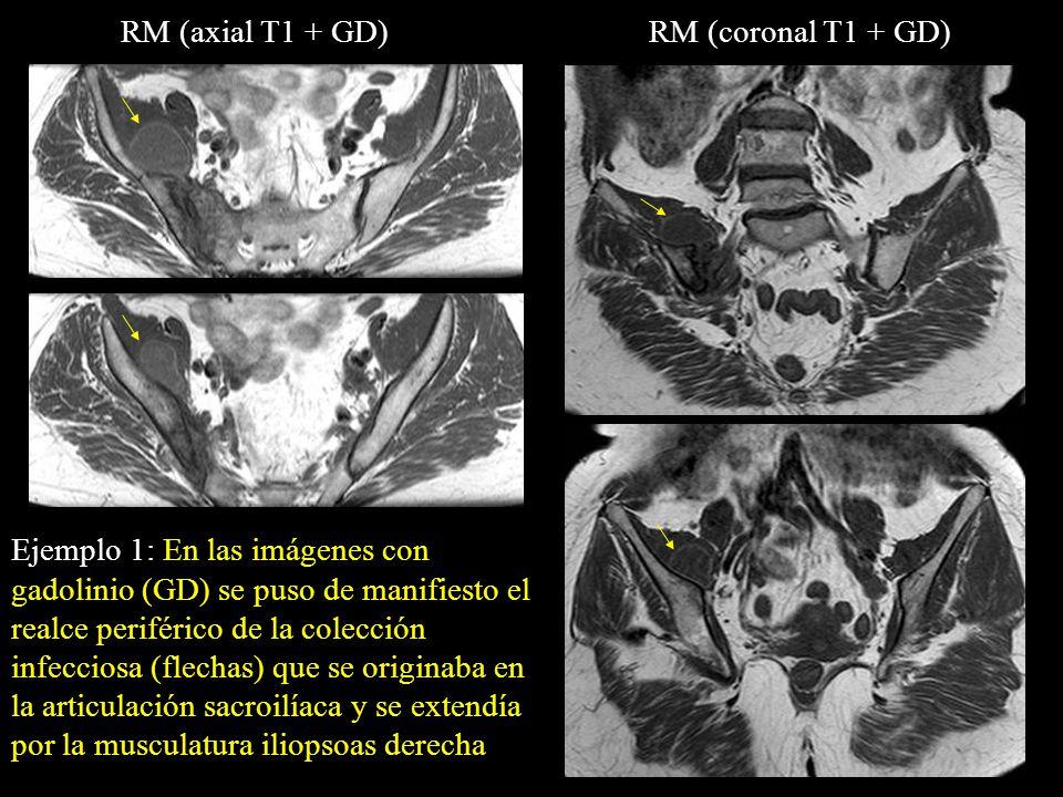 RM (axial T1 + GD) RM (coronal T1 + GD)