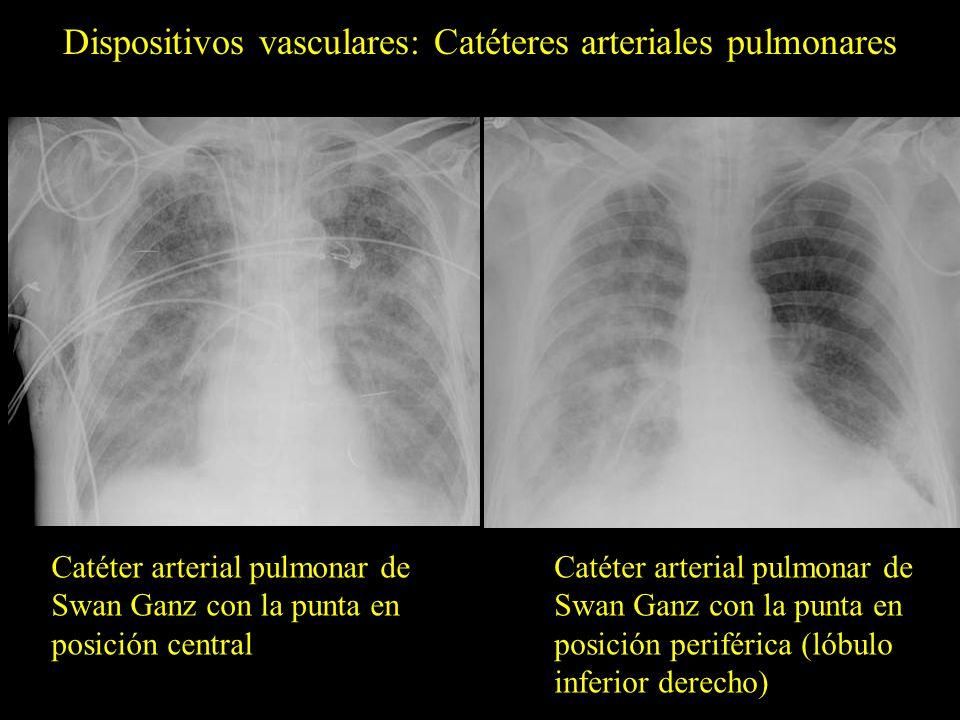 Dispositivos vasculares: Catéteres arteriales pulmonares