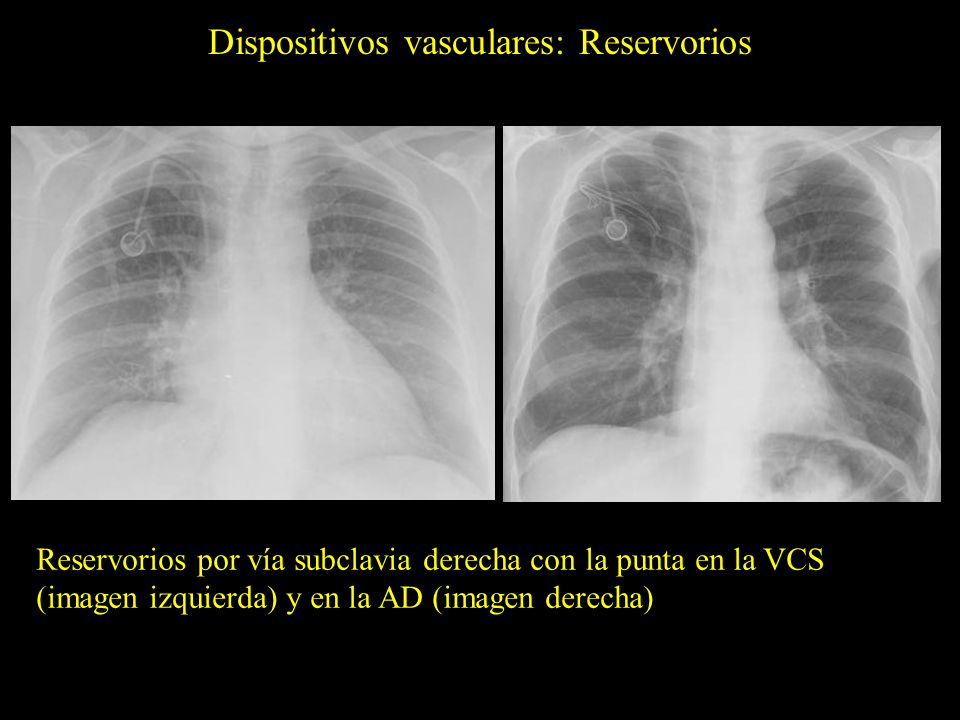 Dispositivos vasculares: Reservorios