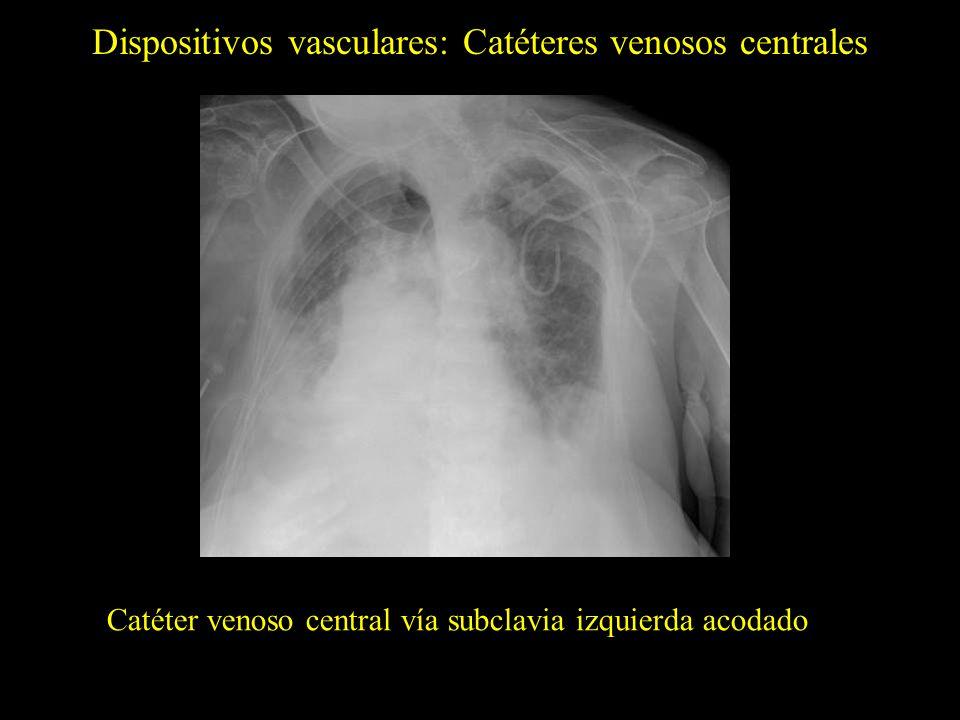 Dispositivos vasculares: Catéteres venosos centrales