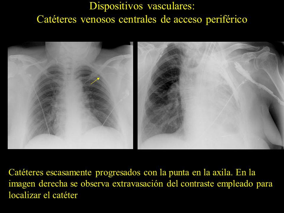 Dispositivos vasculares: Catéteres venosos centrales de acceso periférico