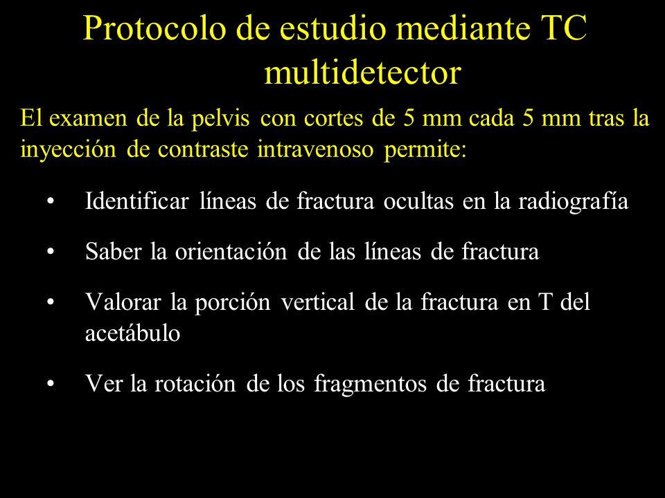 Protocolo de estudio mediante TC multidetector