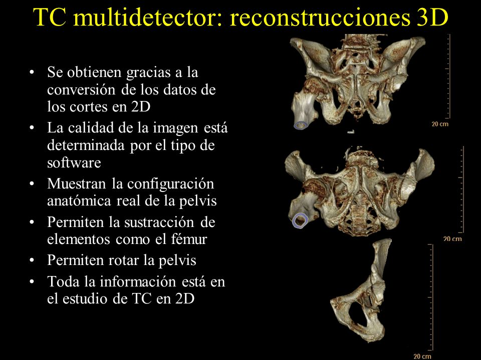 TC multidetector: reconstrucciones 3D