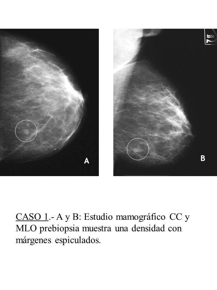 B A. E. CASO 1.- A y B: Estudio mamográfico CC y MLO prebiopsia muestra una densidad con márgenes espiculados.