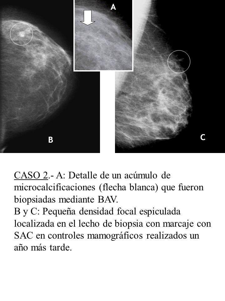 A C. B. CASO 2.- A: Detalle de un acúmulo de microcalcificaciones (flecha blanca) que fueron biopsiadas mediante BAV.