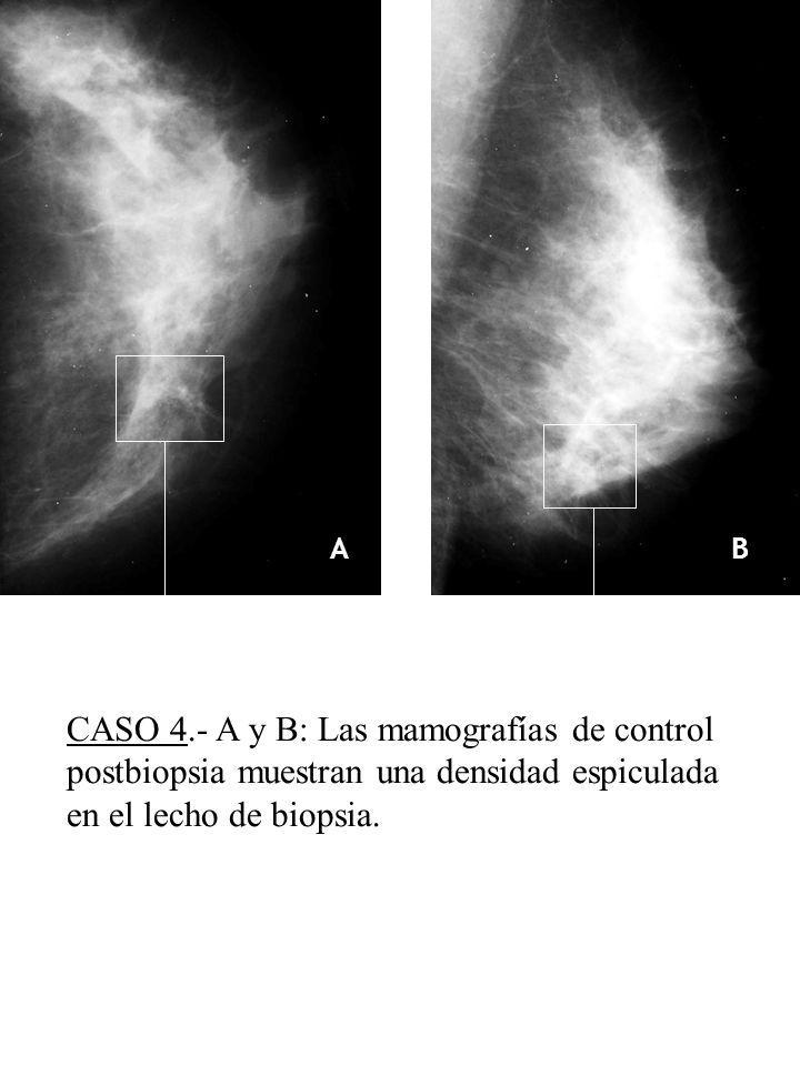 A B. CASO 4.- A y B: Las mamografías de control postbiopsia muestran una densidad espiculada en el lecho de biopsia.