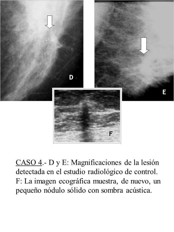 D E. F. CASO 4.- D y E: Magnificaciones de la lesión detectada en el estudio radiológico de control.