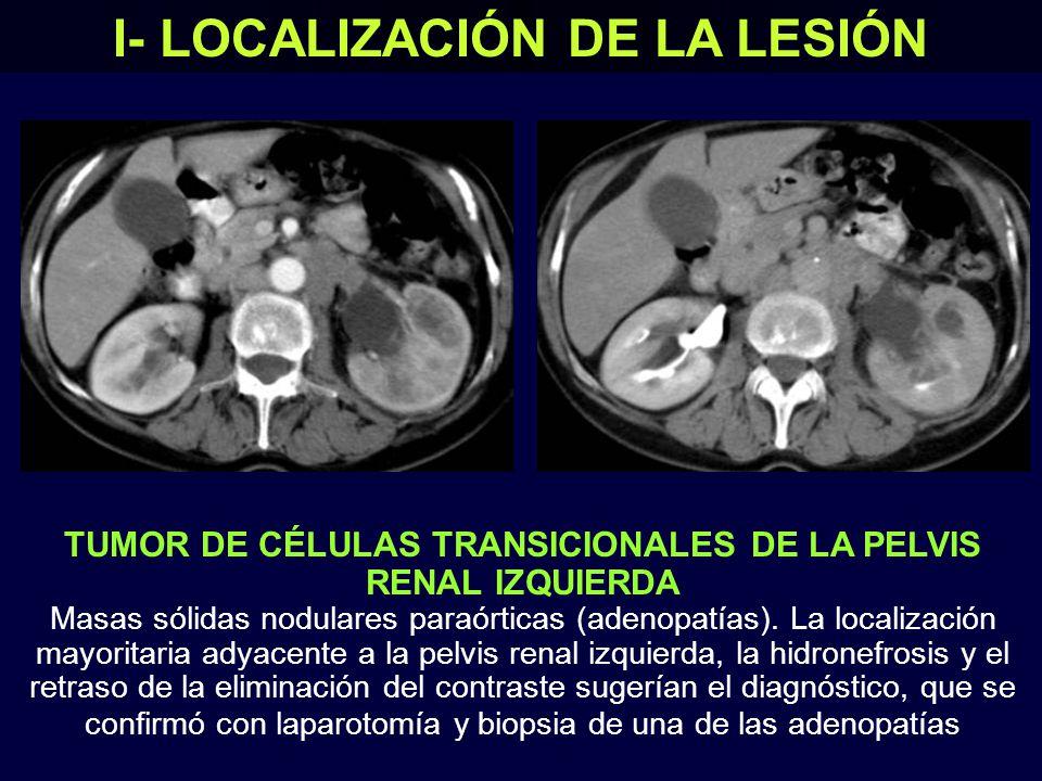 I- LOCALIZACIÓN DE LA LESIÓN