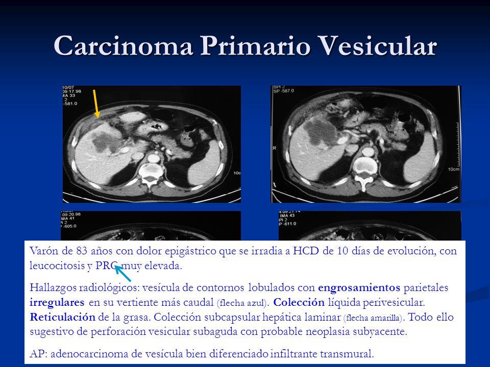 Carcinoma Primario Vesicular