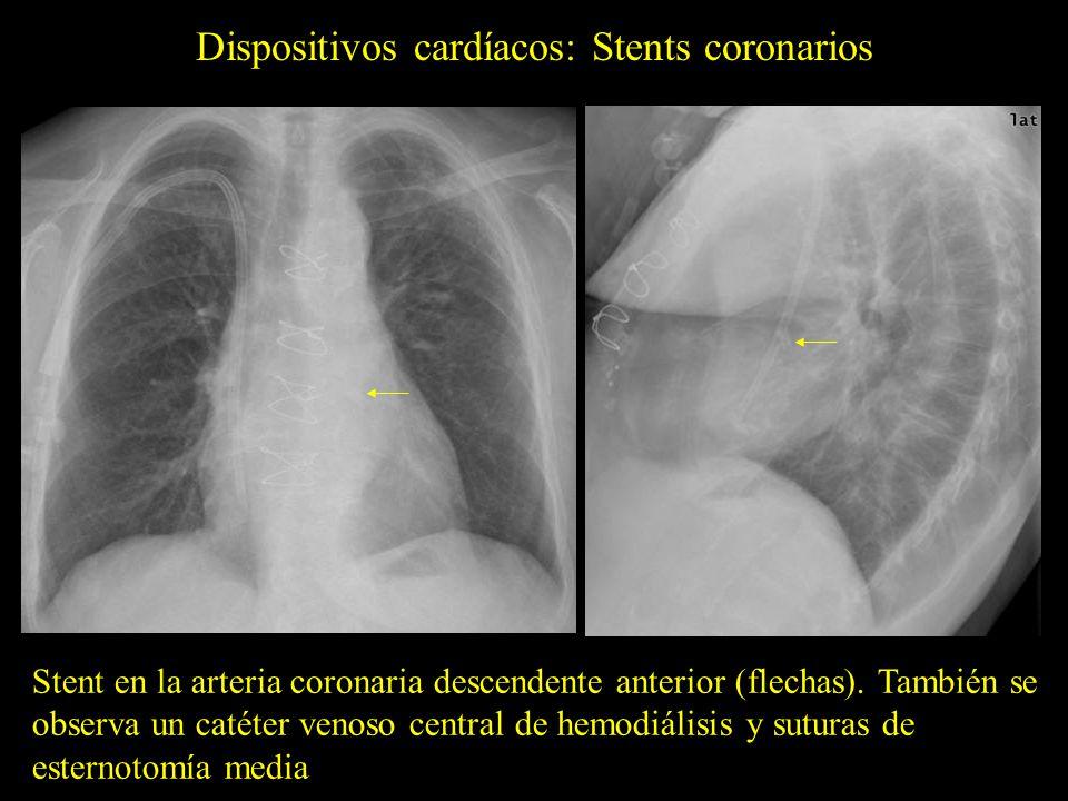 Dispositivos cardíacos: Stents coronarios