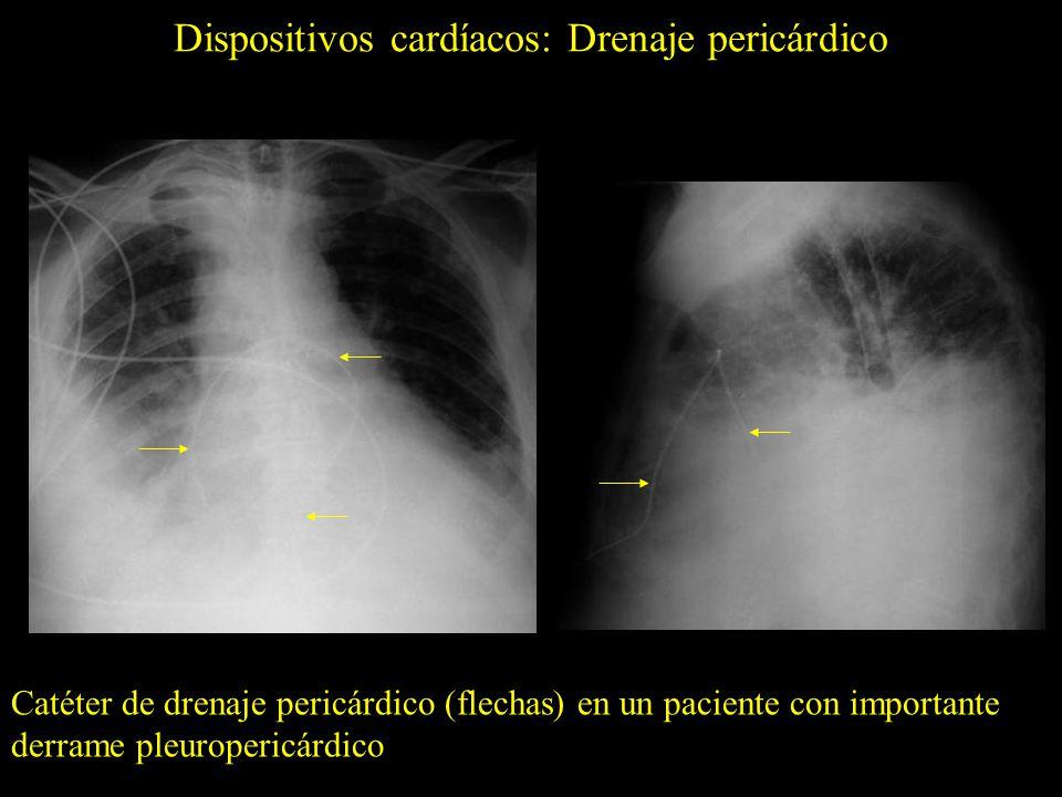 Dispositivos cardíacos: Drenaje pericárdico