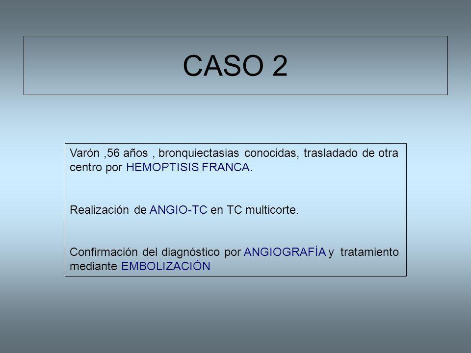 CASO 2 Varón ,56 años , bronquiectasias conocidas, trasladado de otra centro por HEMOPTISIS FRANCA.