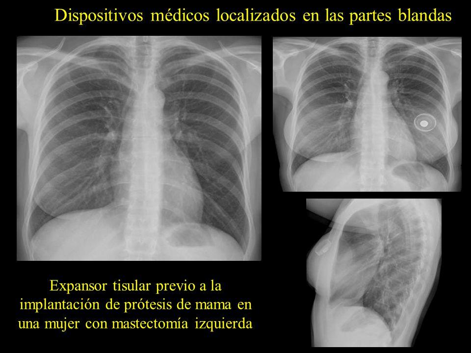 Dispositivos médicos localizados en las partes blandas