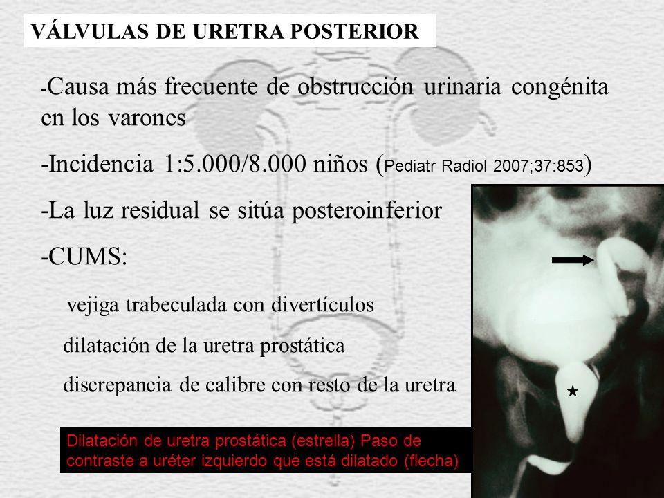 -Incidencia 1:5.000/8.000 niños (Pediatr Radiol 2007;37:853)