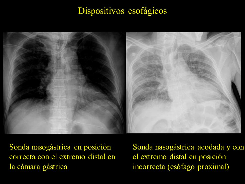 Dispositivos esofágicos