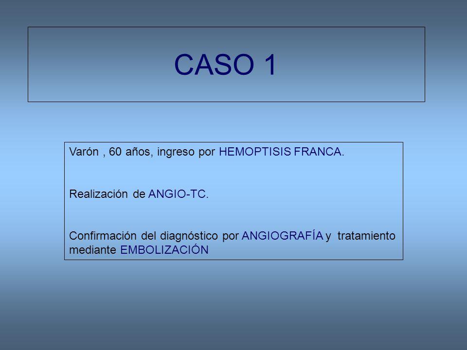 CASO 1 Varón , 60 años, ingreso por HEMOPTISIS FRANCA.