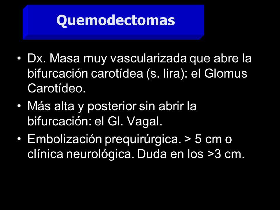 Quemodectomas Dx. Masa muy vascularizada que abre la bifurcación carotídea (s. lira): el Glomus Carotídeo.