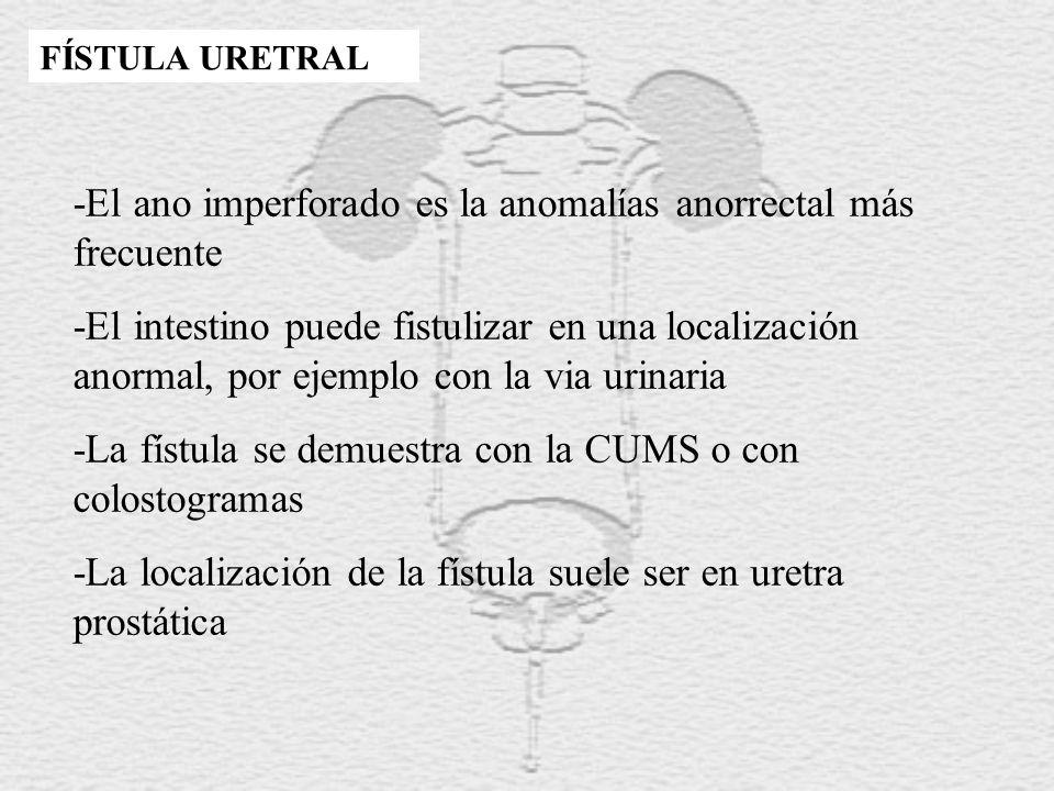 -El ano imperforado es la anomalías anorrectal más frecuente