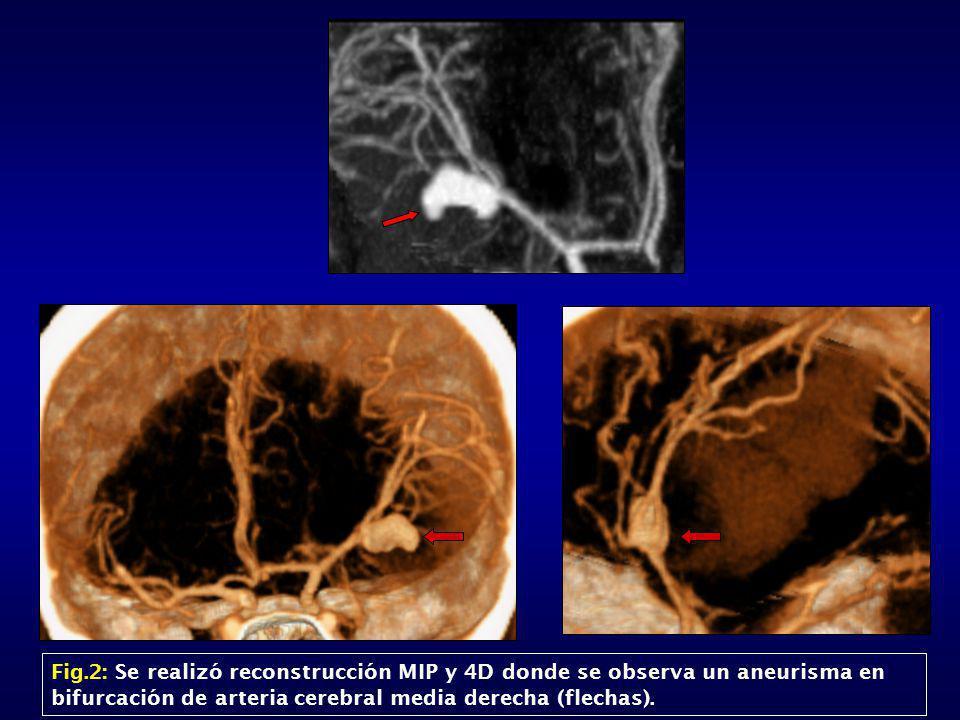Fig.2: Se realizó reconstrucción MIP y 4D donde se observa un aneurisma en bifurcación de arteria cerebral media derecha (flechas).
