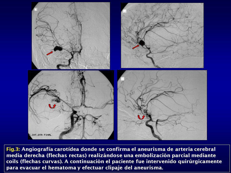 Fig.3: Angiografía carotídea donde se confirma el aneurisma de arteria cerebral media derecha (flechas rectas) realizándose una embolización parcial mediante coils (flechas curvas).